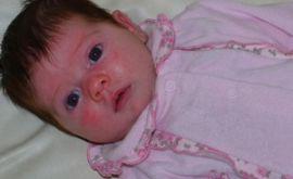 Красные щеки у грудного ребенка – что делать?