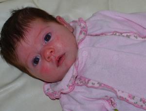 Красные щеки у грудного ребенка - что делать?